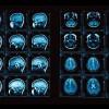 Метод функционального магнитно-резонансного сканирования (фМРТ) позволяет «читать мысли».