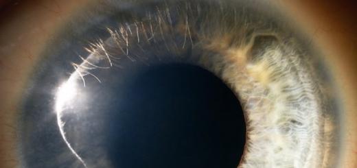 Прорыв в исследовании стволовых клеток: учёные смогут выращивать новые человеческие глаза