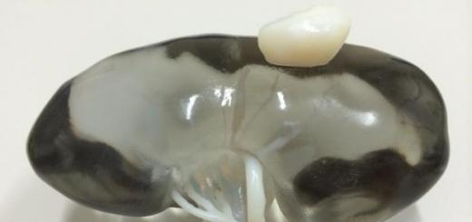 Хирурги создали 3D-печатную почку с опухолью, чтобы попрактиковаться перед ответственной операцией