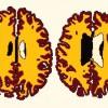 Избыточный вес связали с ранним старением мозга