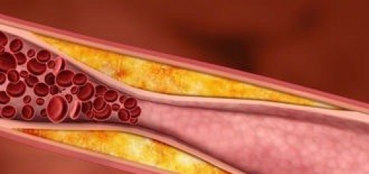 Повышенный уровень холестерина снижает риск развития диабета, как установили ученые из Нидерландов. Новое исследование показало, почему прием статинов может быть вредным для здоровья.
