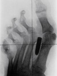 Самые причудливые рентгеновские снимки в истории медицины. Некоторые из них жуткие и пугающие, возможно часть из них вызовет у вас шок. Трудно поверить в то, что это правда, однако снимки говорят сами за себя.