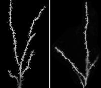 У детей с аутизмом в мозге обнаружены дополнительные синапсы