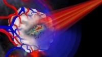 Использование золотых нанотрубок — новый метод поиска и разрушения раковых клеток