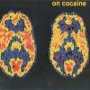 От кокаиновой зависимости научились избавлять глубокой стимуляцией мозга